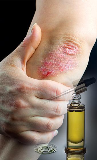 Best CBD Oil for Psoriasis